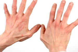 симптомы контактного дерматита