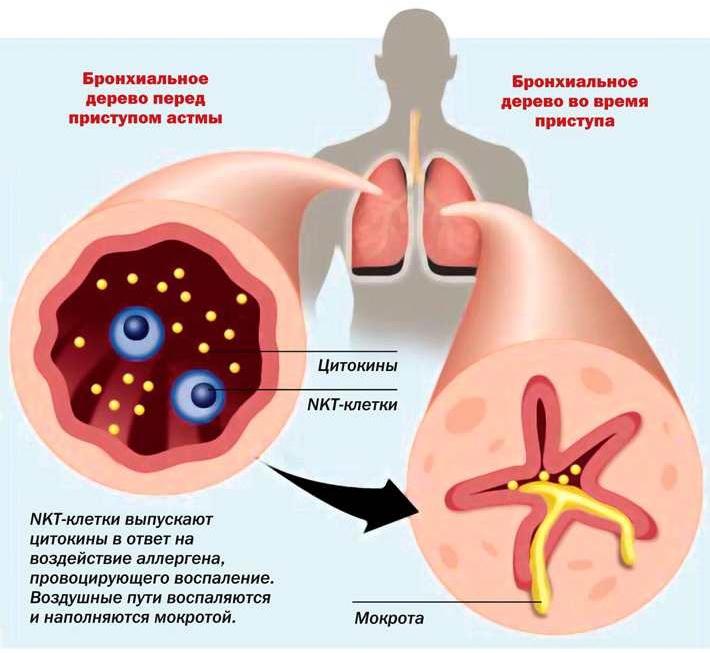 части как повлиять на страховую чтобы согласовала аллергопробы установил одинаковые условия