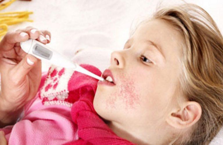 Скарлатина симптомы, лечение и профилактика