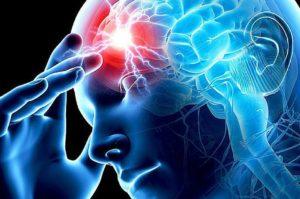 Психические расстройства при инсульте