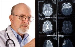 Психические нарушения при опухолях головного мозга