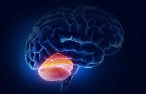 Поражения мозжечка