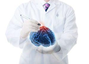 Психические расстройства при поражении мозжечка
