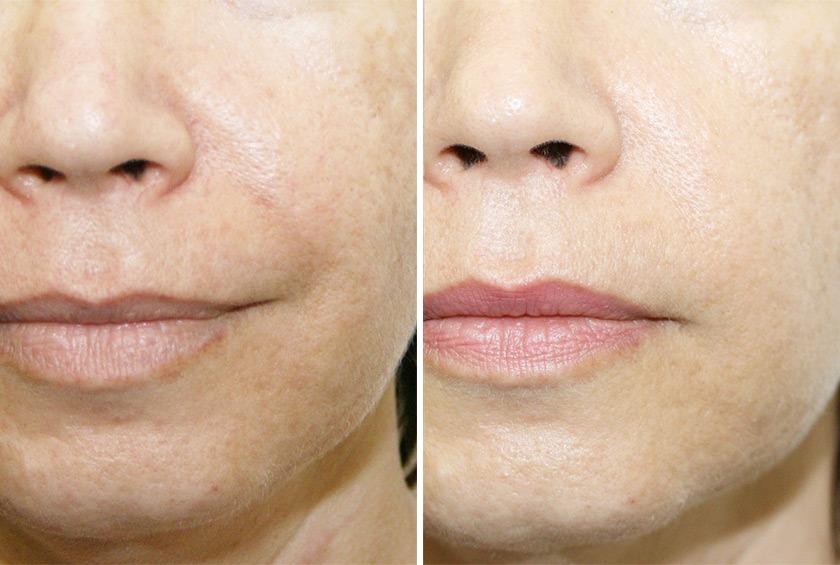 Тиогамма для лица до и после, отзывы