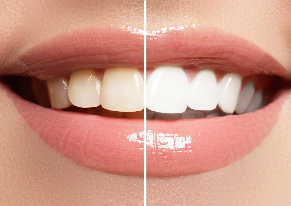 Как эффективно отбелить зубы в домашних условиях