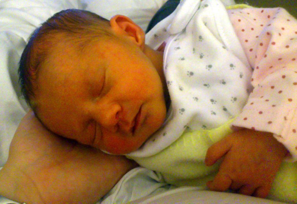 Физиологическая желтушка у новорожденных симптомы и последствия