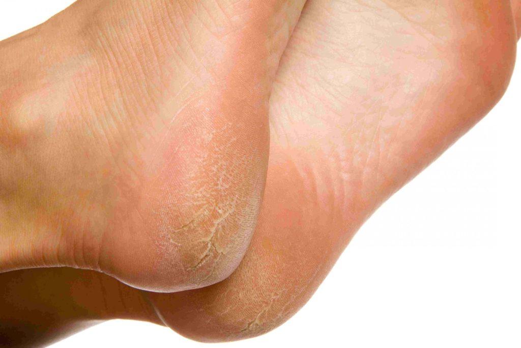 Как быстро убрать натоптыши на ногах в домашних условиях